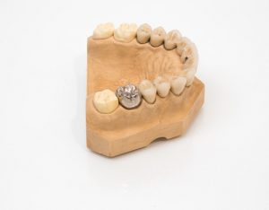 gold tooth on a mold