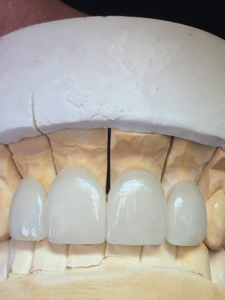 porcelain fused to zirconia pfz crowns and bridges can serve as a cadcam alternative to the traditional porcelain fused to metal pfm restorations